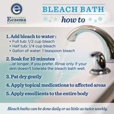"""Bleach Bath: Eczema """"Treatment"""" You Can Do At Home"""