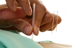 Acupuncture - Chinese Medicine