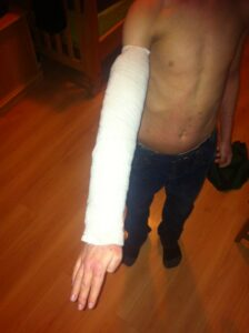 AJ arm wet wrap