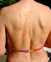 rash on woman whose eczema trigger was chloramine
