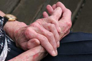 eczema hands red