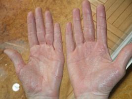 hand eczema improved with vitamin D