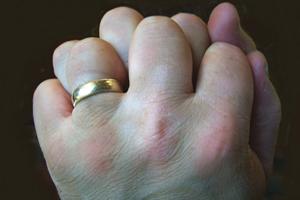 dermatitis on top of hands - photo #32