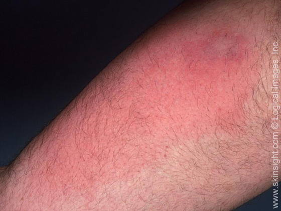 This image displays redness typical in the early stages of cellulitis.