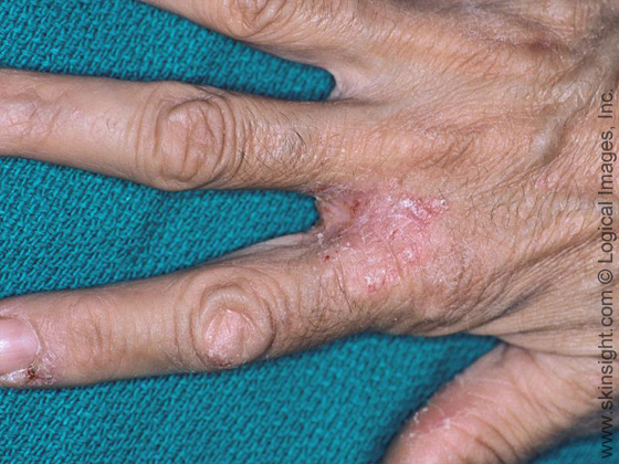 This is irritant contact dermatitis of the web spaces and fingers.