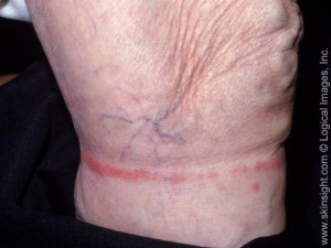 The well-demarcated line correlates with elastic in nylon stockings that caused this allergic reaction.