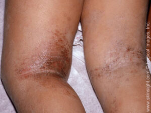 This image displays atopic dermatitis (eczema) in the body folds of the back of the legs coupled with staph bacteria.