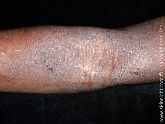 Atopic dermatitis (eczema) typically involves the folds of the elbows and knees. When longstanding, the skin can be very thickened (lichenified) from chronic scratching.