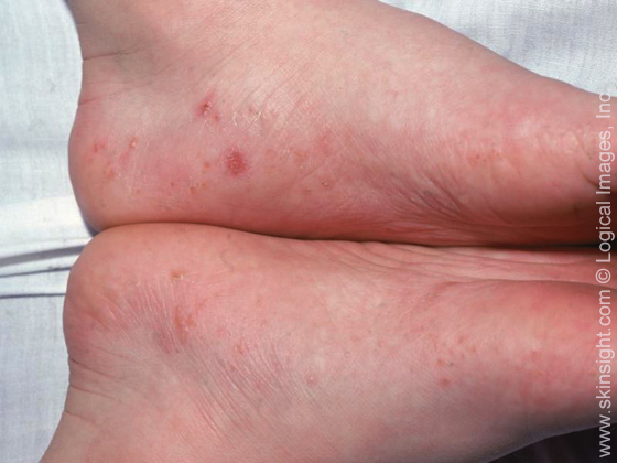 This image displays deep-appearing blisters typical of dyshidrotic eczema.