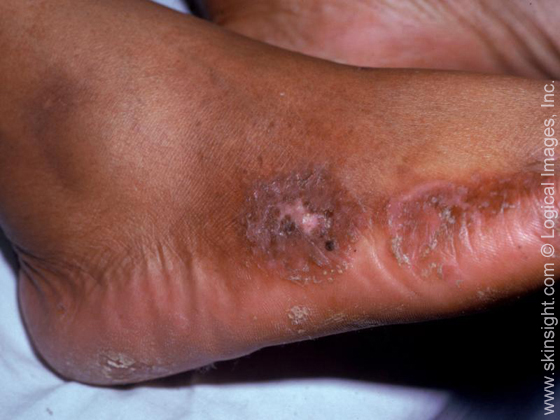 corticosteroid injection feet