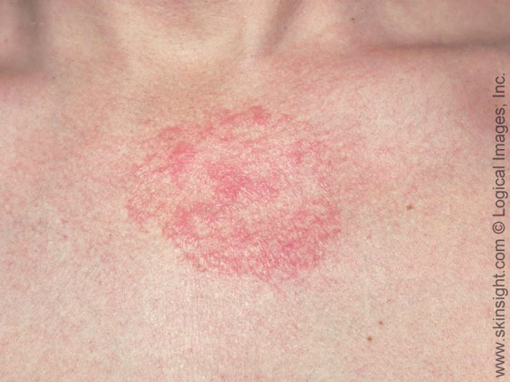 Seborrheic dermatits can affect the upper chest and have round, red areas in addition to slight scaling.