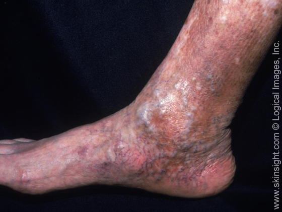 How is eczema treated on the legs