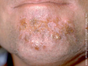 This image displays honey-colored crusts in the beard area, typical of impetigo.