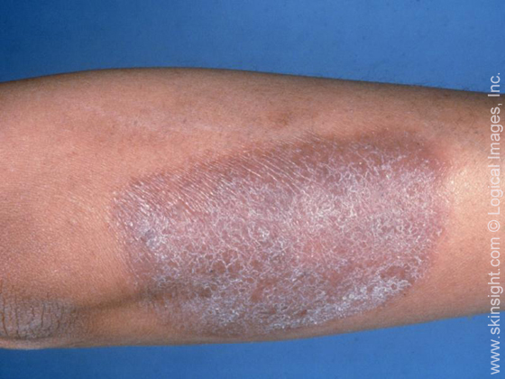 This image displays scaly skin due to lichen simplex chronicus.