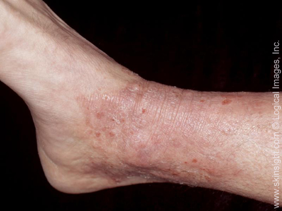 dry skin on top of foot #10