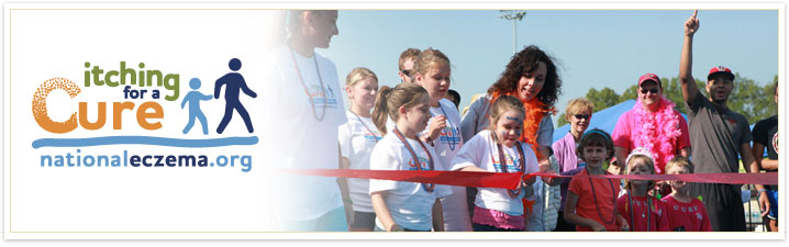 Itching for a Cure walk for eczema