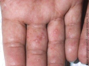 dyshidrotic eczema on hands and fingers pic