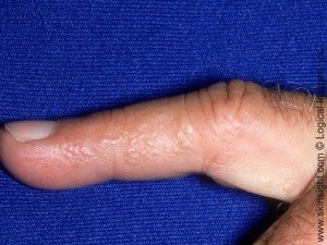 Dyshidrotic eczema on side of finger