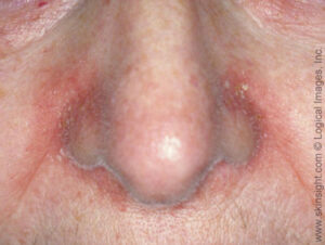 Seborrheic dermatitis on the sides of nose