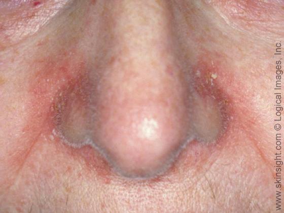 Dermatitis facial seborrheic