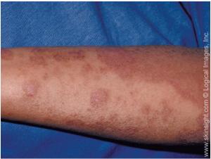 Allergic Contact Dermatitis Arm