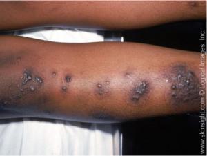 Nummular eczema on the leg