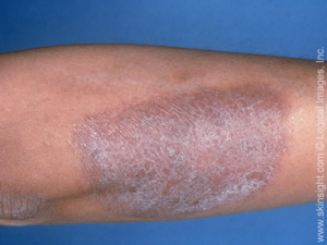 Dry Scaly Skin on Legs | LIVESTRONG.COM