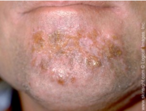 Man with impetigo