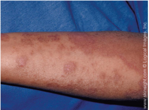 Atopic dermatitis rash on an adult arm