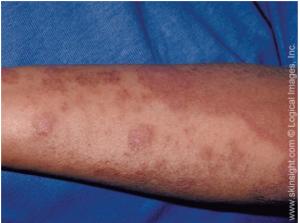 Atopic Dermatitis Symptoms Causes Treatment Triggers