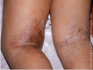 atopic dermatitis | national eczema association, Human Body