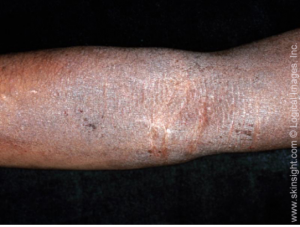 Atopic dermatitis with thickened (lichenified) skin from repeated scratching