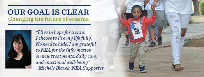 Donate to National Eczema Association