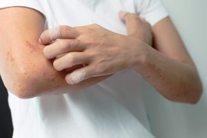 First Biologic Approved for Moderate to Severe Atopic Dermatitis