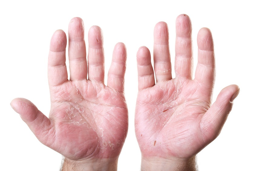 Hand eczema on the palms