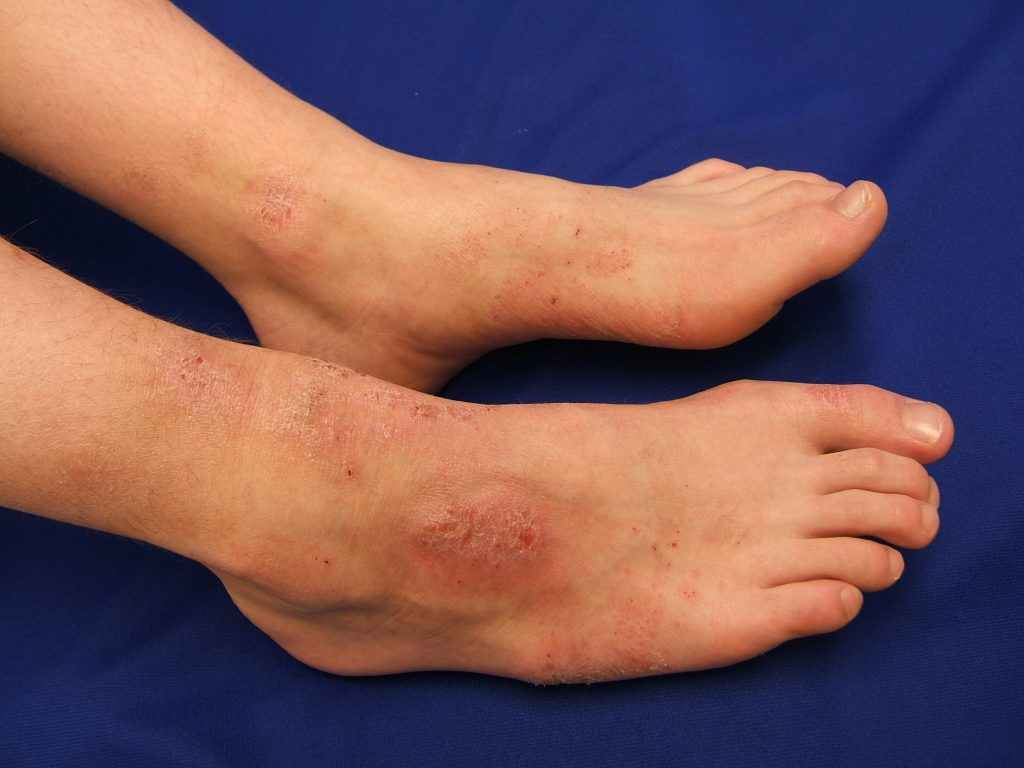 Atopic dermatitis rash on the feet of an adult male