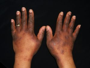 Atopic dermatitis on the hands