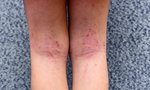 atopic dermatitis on the backs of the knees