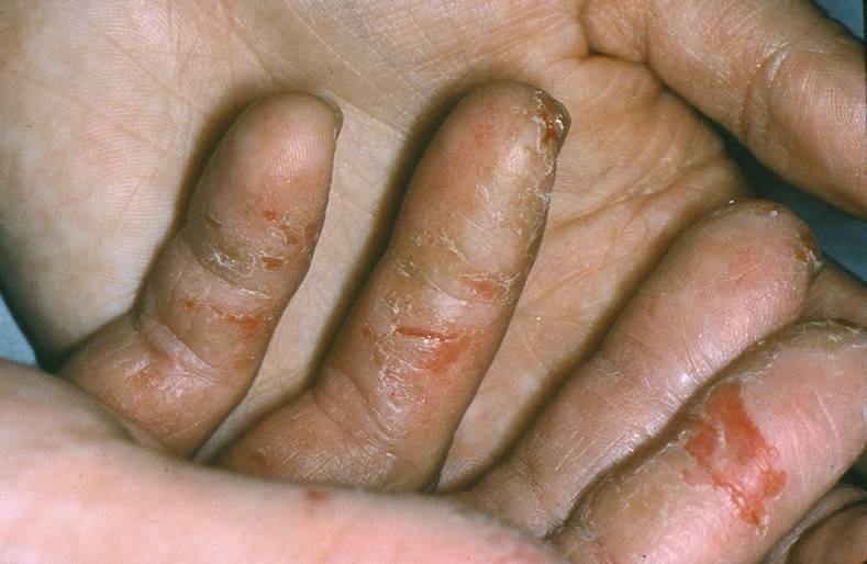 eczema hands vörös foltokat hányt az arcon
