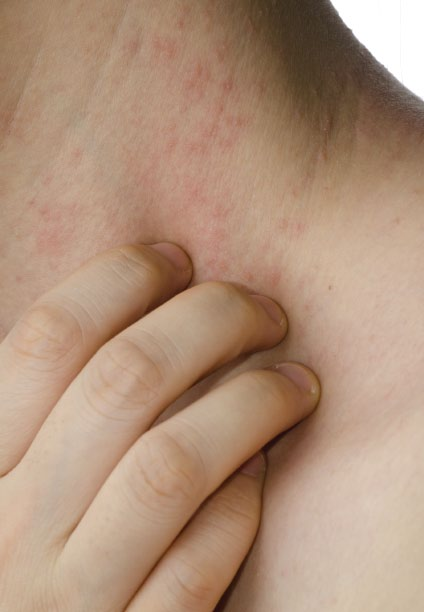 eczema symptoms | causes | treatments | types | triggers, Skeleton