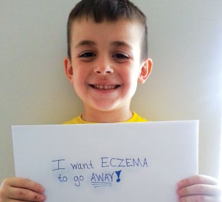 millions of children have eczema atopic dermatitis