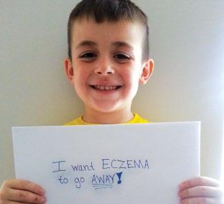 millions of children have eczema atopic dermatitis