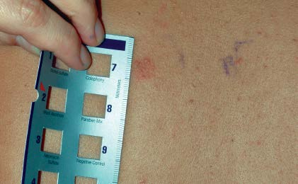 reading a patch test