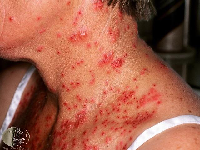 eczema herpeticum on adult neck