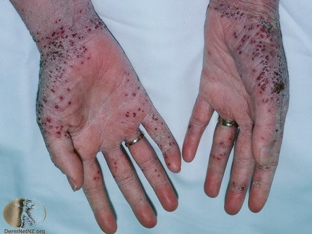 eczema herpeticum on hands