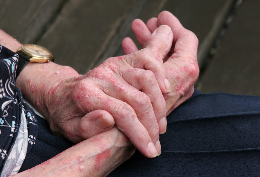 Handling Hand Eczema: Tips from the NEA Community