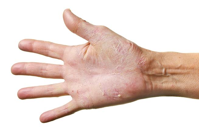 Hand Eczema Common Among Health Care Workers