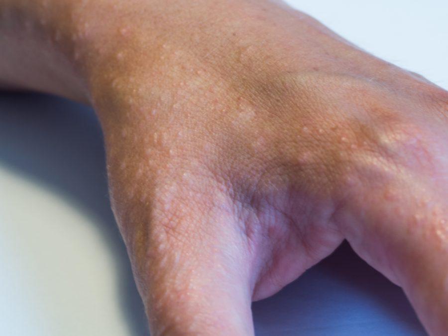 Decoding the mystery of dyshidrotic eczema | National Eczema Association