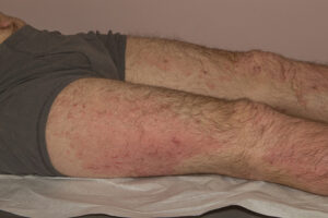 eczema rash on legs of man with atopic dermatitis