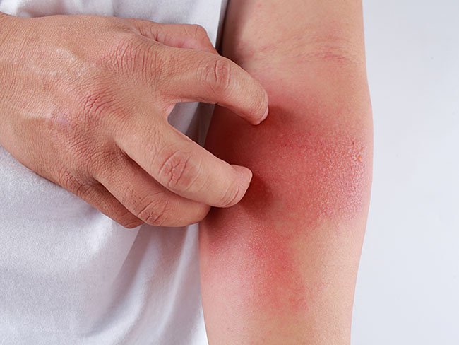 Is that eczema?! Diagnostic and therapeutic challenges for atopic dermatitis